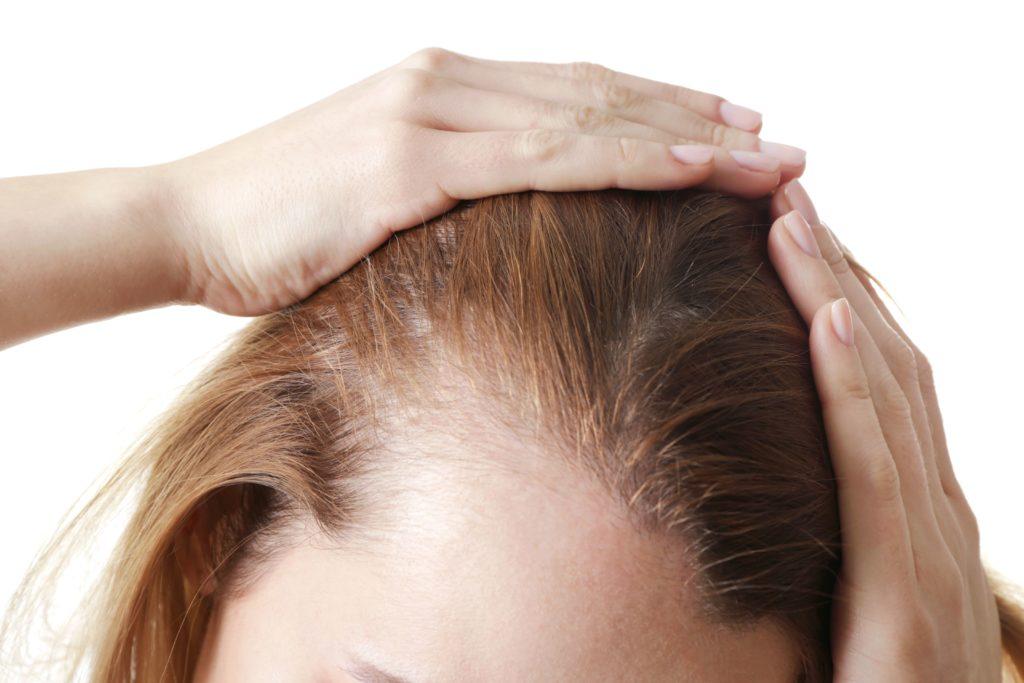 calvitie, cheveux, injections, hydratation, chute de cheveux.